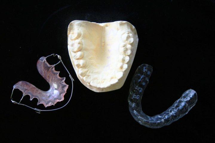 dentist in Japan, dental retainers